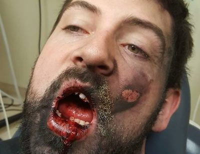 Житель США лишился семи зубов из-за взорвавшейся электронной сигареты