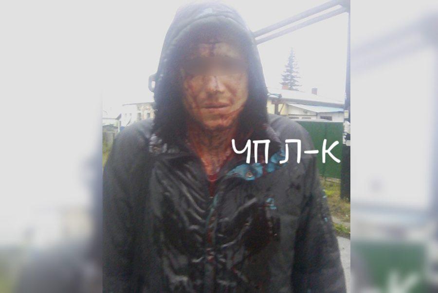 Соцсети: в кузбасском городе мужчине на улице пробили голову